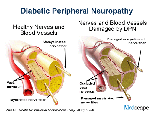 Comparison of healthy nerves versus nerves damaged by Diabetic Peripheral Neuropathy from Medscape