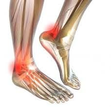Neuropathy is most common in the feet.