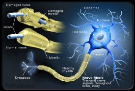 An illustration of a nerve cell with neuropathy